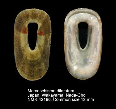 Macroschisma dilatatum