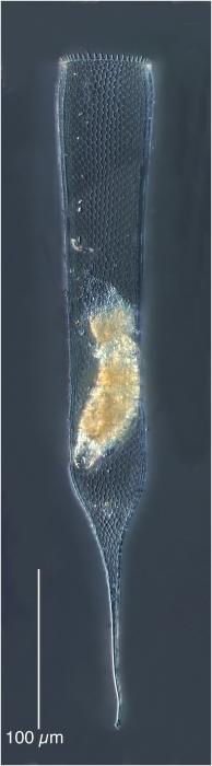 Parafavella gigantea (Brandt 1896)