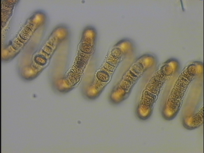 Nodularia spumigena