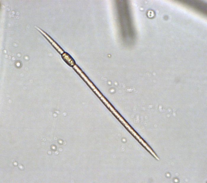 Raphidiopsis mediterranea
