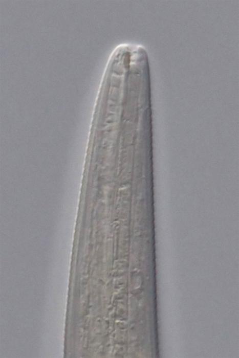 Paratype female anterior end