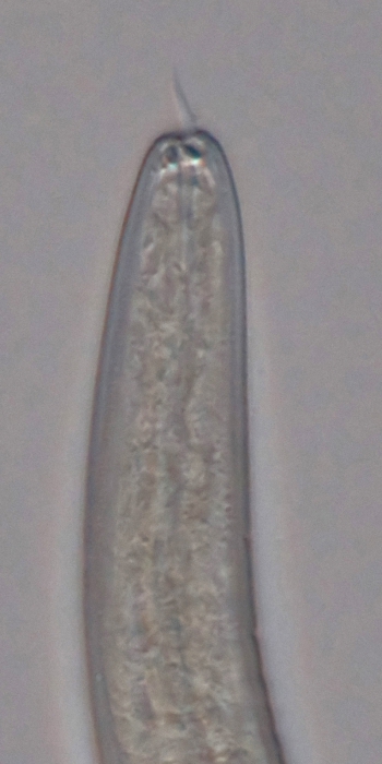 Paratype male anterior end