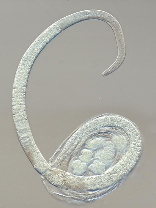 Female specimen inside the host