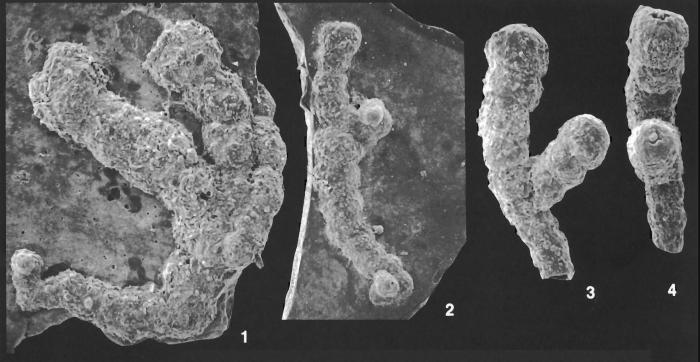 Placopsilina bifurca Loeblich and Tappan Holotype and Paratypes
