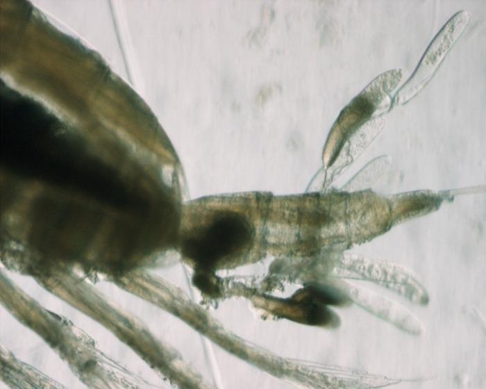 Calanus finmarchicus, spermatophores, high mag, 8,5x