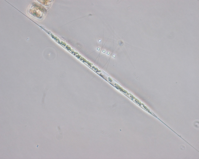 Rhizosolenia setigera