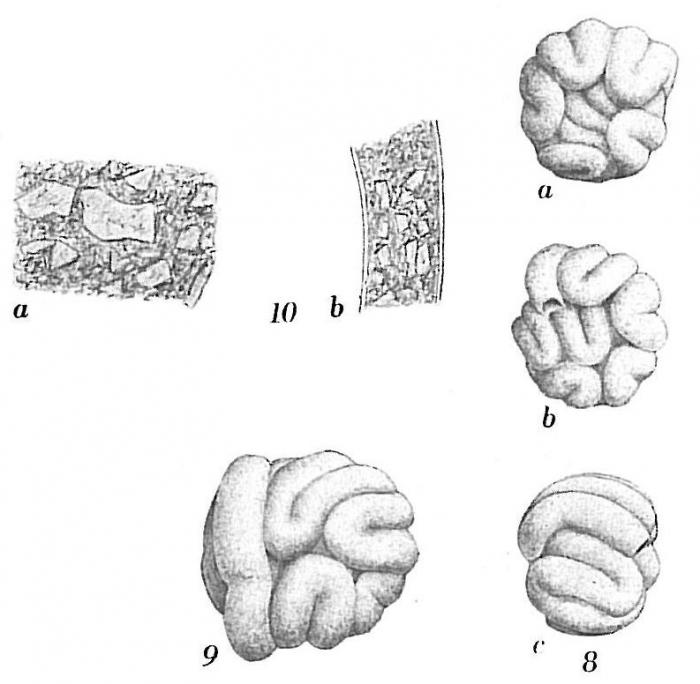 Glomospira glomerata