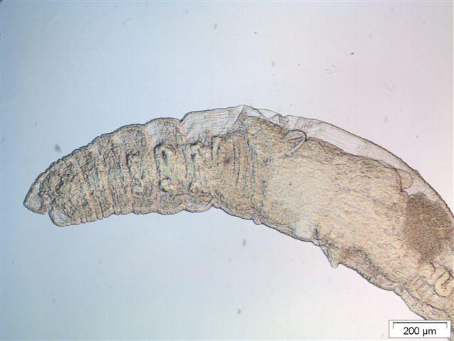 Tubificoides heterochaetus anterior part