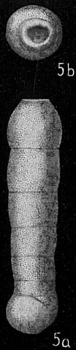 Siphogenerina columellaris