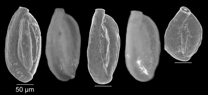 Quinqueloculina stelligera Schlumberger, 1893