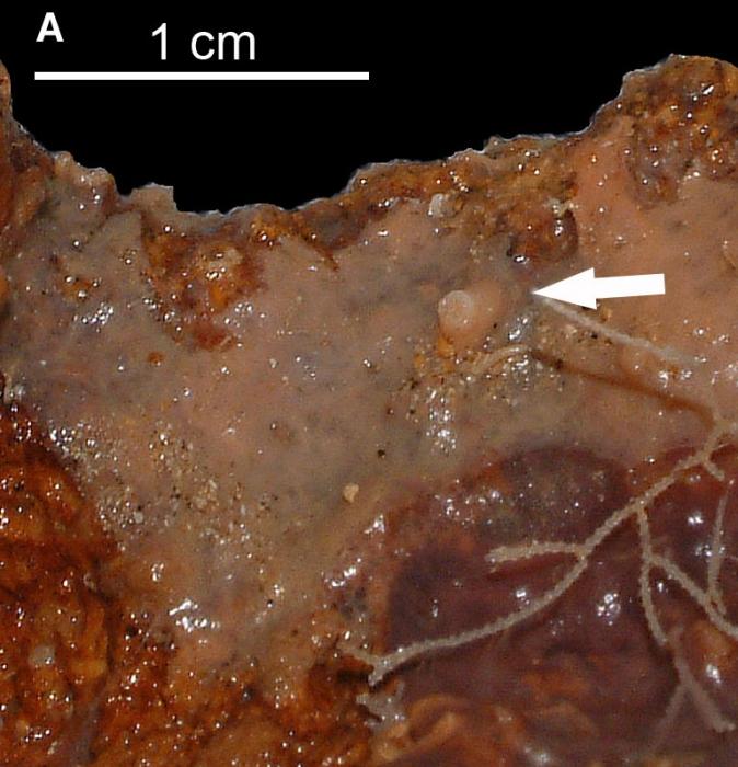 Esperiopsis cimensis