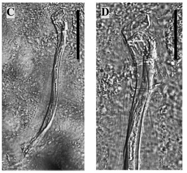 Limipolycystis wallbergi