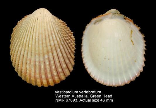 Vasticardium vertebratum