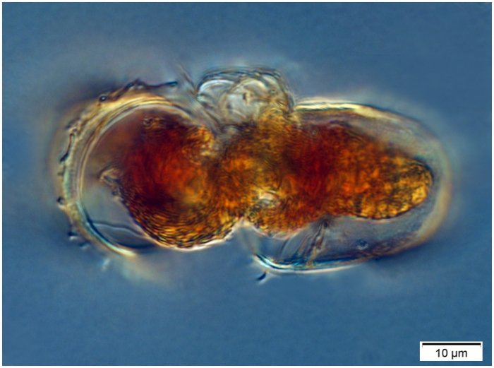 Conjugating pair of Acanthostomella norvegica