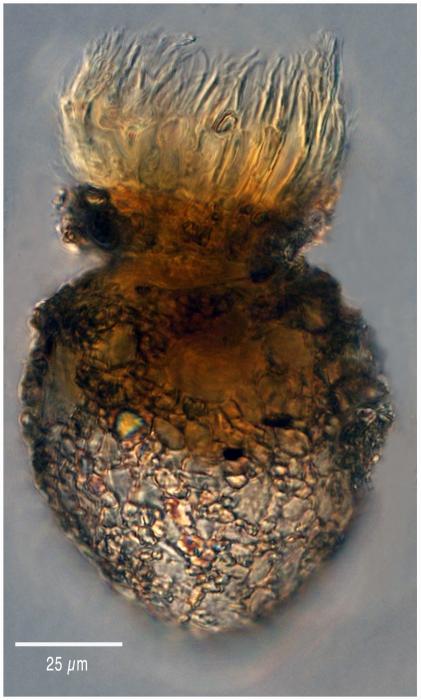 Stenosomella ventricosa