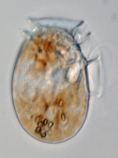 Dinophysis ovum