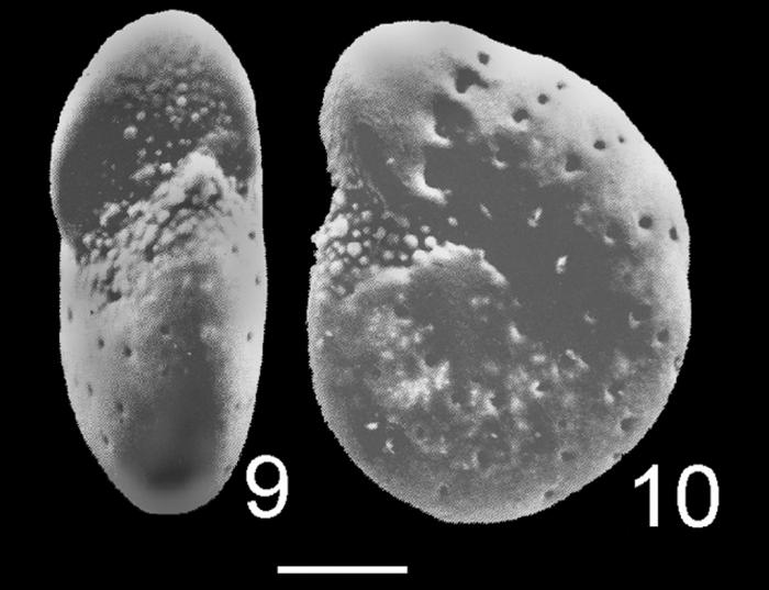 Elphidium sydneyense HOLOTYPE
