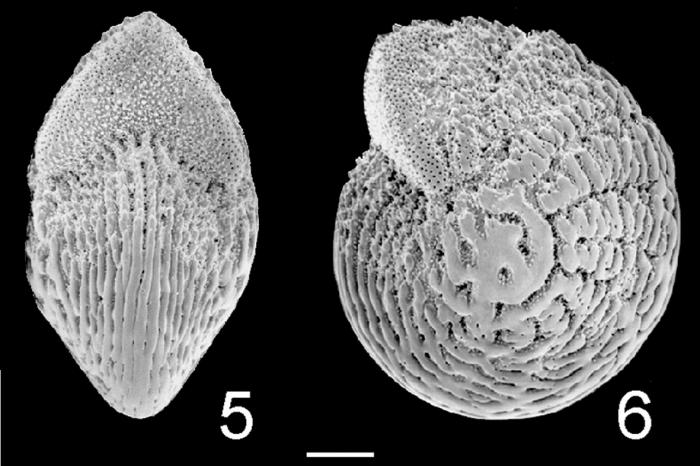 Elphidium hispidulum Australia