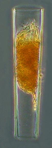 Eutintinnus tubulosus (Ostenfeld 1899)