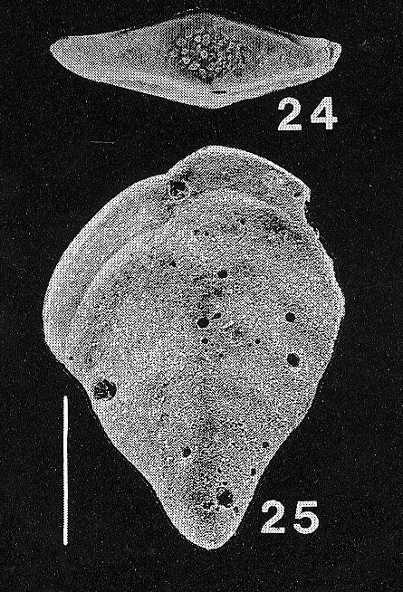 Inflatobolivinella virgata (Cushman)
