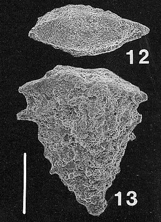 Nodobolivinella jhingrani (Kalia)