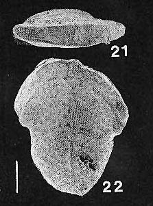 Inflatobolivinella leizhouensis He & Lin HOLOTYPE