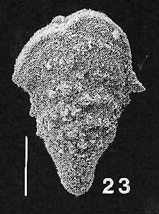 Rhombobolivinella toddae Hayward PARATYPE