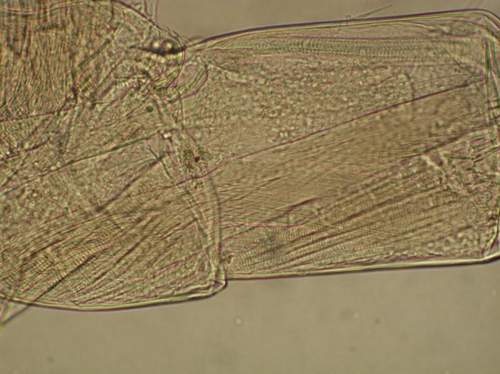 Part: Antennal peduncle