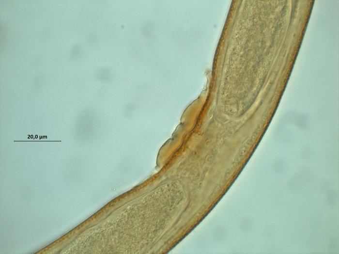 Calomicrolaimus compridus, copulatory plug