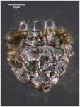 Wangiella dicollaria (Nie 1934)