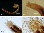 Protodrilus puniceus figure 1.