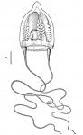 Amphinema turrida from Bouillon (1980), Pacific form