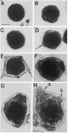 Development of the brooded, direct developing larvae