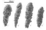 Reophax nana Rhumbler, 1913