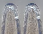 Lectotype female anterior end, author: Holovachov, Oleksandr