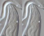 Lectotype female anterior
