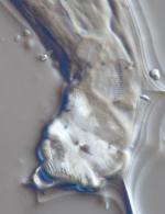 Lectotype female of Camacolaimus roebergensis