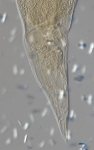 Lectotype female posterior