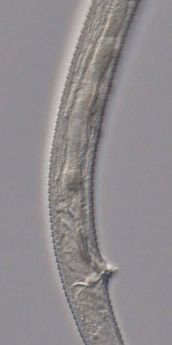 Holotype male posterior end