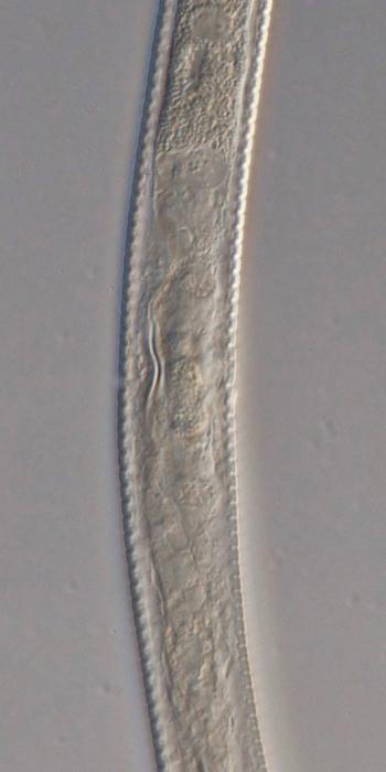 Paratype female midbody of Antomicron lorenzeni
