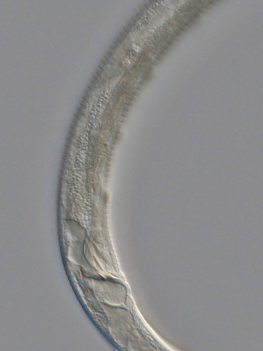 Holotype male posterior end of Antomicron quindecimpapillatus