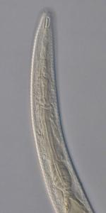 Paratype female anterior end of Antomicron quindecimpapillatus