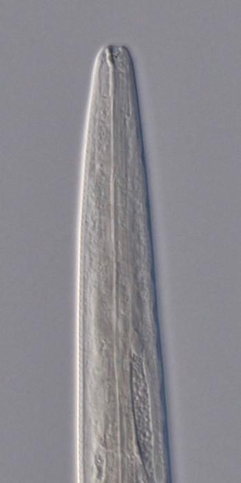 Holotype male anterior end of Deontolaimus catalinae