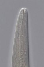 Paratype female anterior end of Deontolaimus catalinae