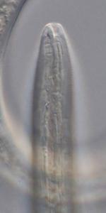 Paratype female anterior end of Deontolaimus timmi