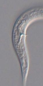 Holotype male posterior end of Leptolaimoides filicaudatus