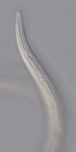 Paratype female anterior end of Leptolaimoides filicaudatus