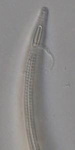 Holotype male anterior end of Leptolaimoides leptomicron