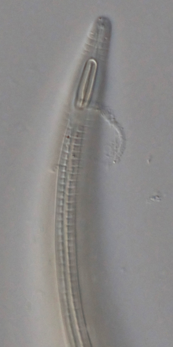 Holotype male anterior end of Leptolaimoides leptomicron