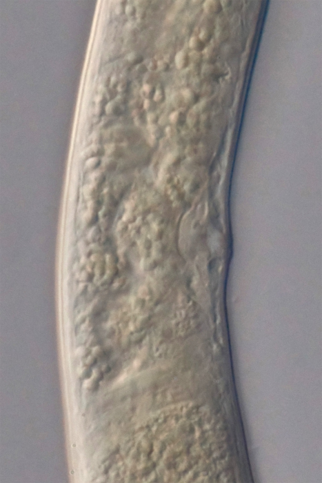 Holotype female midbody of Loveninema tubulosa